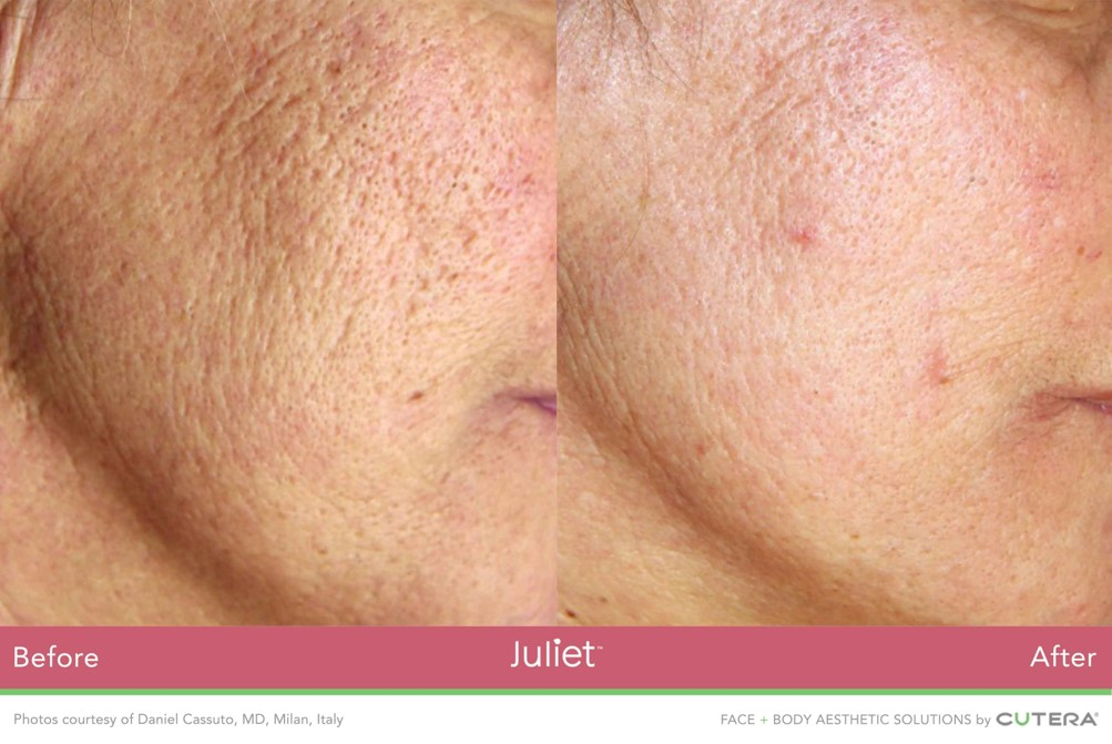 Exfoliating Laser Peel at Revive Medical Spa, LLC